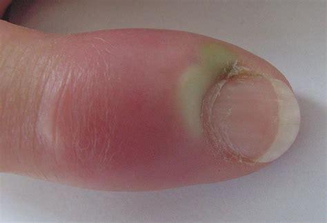 untreated yeast infections picture 9