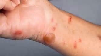 skin burns picture 21