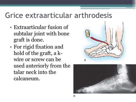 cpt code for manipulation of subtalar joint picture 3