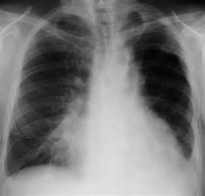 microbacterial pneumonia picture 7