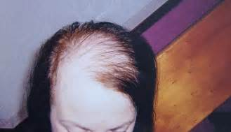 correct hair thinning in women picture 14