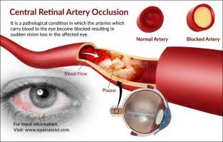 blood clot behind eye symptoms picture 2