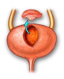 hypotonic bladder treatment partial cystectomy picture 6