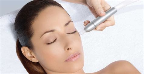 microdermabrasion for acne scars picture 6