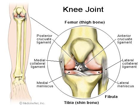 osteoarthritic knee joint pain picture 2