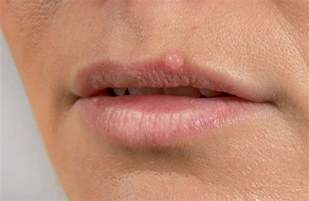 picture stages of herpes around mouth picture 2