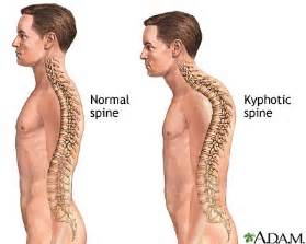 scoliosis back and neck stiffness el disorders picture 3