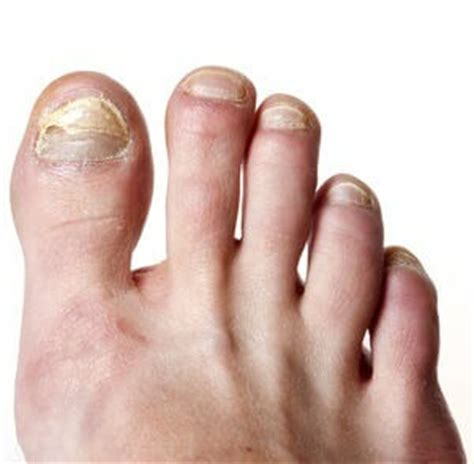 can people with toenail fungus get pedicures picture 11
