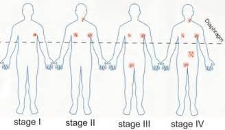 autoimmune thyroiditis armpit lymph nodes picture 2