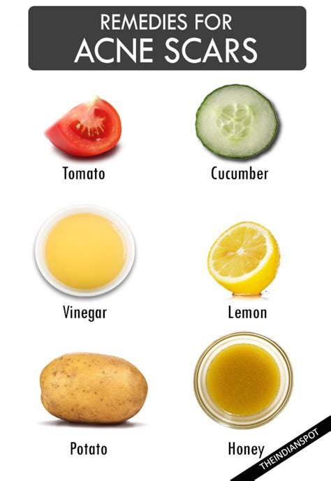 home remedies for acne scarring picture 5