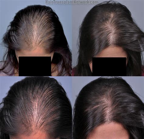 aldactone hair loss picture 5