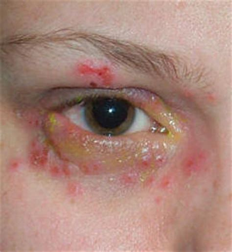 ophthalmic herpes picture 9