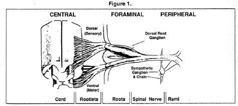 luschka joint arthropathy picture 3