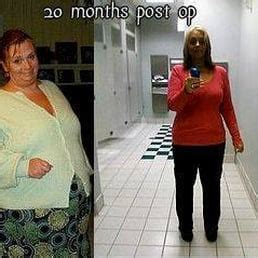 weight loss surgery southern pines nc picture 2