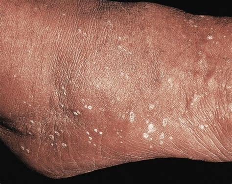 flat warts pictures picture 11