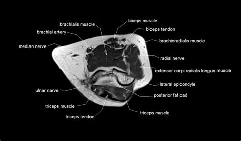 joint anatomy picture 3