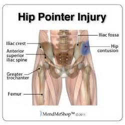 hip flexor muscle pull picture 21
