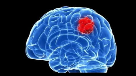 cholesterol cyst brain picture 6