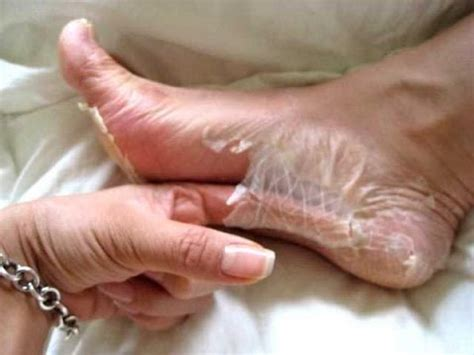 feet skin picture 10