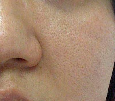 skin pores picture 3