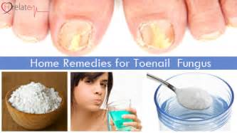 home remeby for toenail fungus picture 11