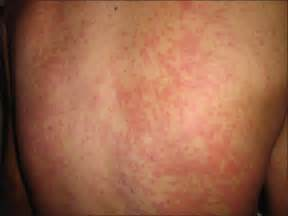 herpes simplex virus full body rash and hives picture 13