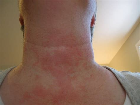 about skin rashes on the neck area picture 7