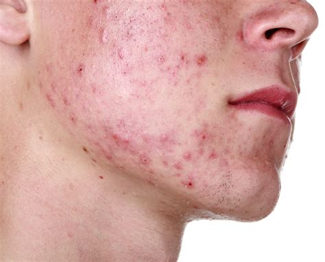 home remedies acne picture 1