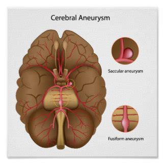 aneurysm high blood pressure picture 21