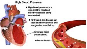 what is elevated blood pressure picture 1