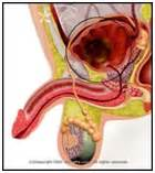 cure bladder cancer picture 5