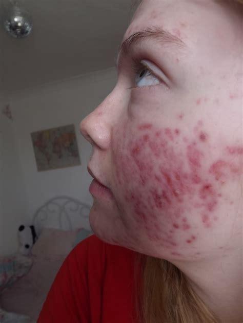 cortisol en acne google picture 3