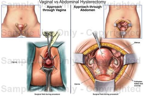 skin texture changes after total hysterectomy picture 1