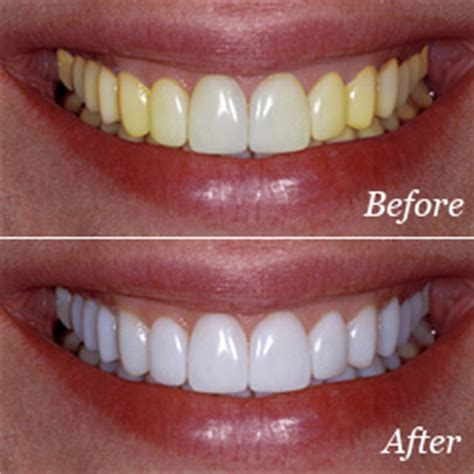 new jersey teeth whitening picture 2