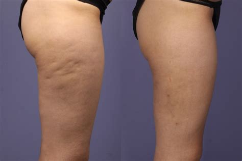 Causes of cellulite picture 2