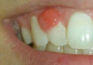 yeast infection around the mouth picture 7