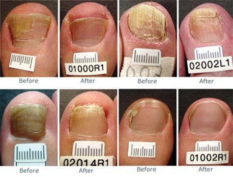 laser pinpoint laser in il for toe fungus picture 8