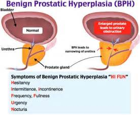 prostatic hypertrophy picture 5