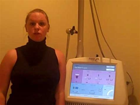coolbeam laser for stretch marks nyc picture 11