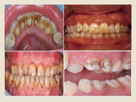 discolored teeth enamel effacia picture 17