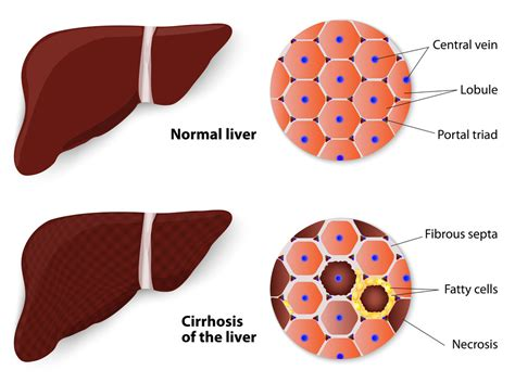 cirrosis of the liver hemochromatosis picture 17