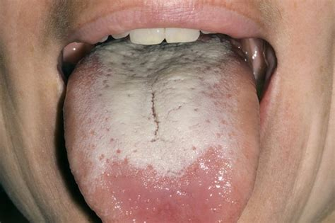 white coated tongue yeast picture 6