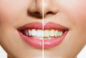 teeth whitening picture 3