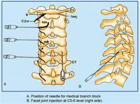 cervical and lumbar facet joint blocks picture 7