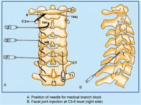 cervical facet joint procedure picture 5