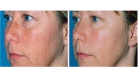 lia schorr skin care inc picture 7