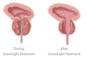 Laser prostate surgery picture 2
