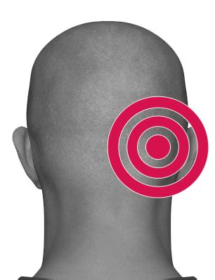 can i cut my own cyst on head picture 10