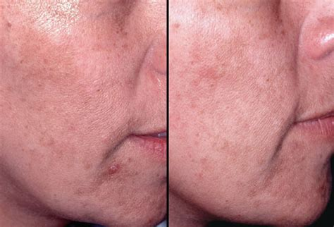 skin lasik for acne picture 9
