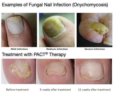 pinpoint laser for toe fungus chicago picture 3